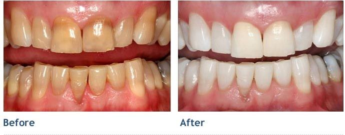 Tetracycline Staining On Your Teeth Our Affordable Treatment Can
