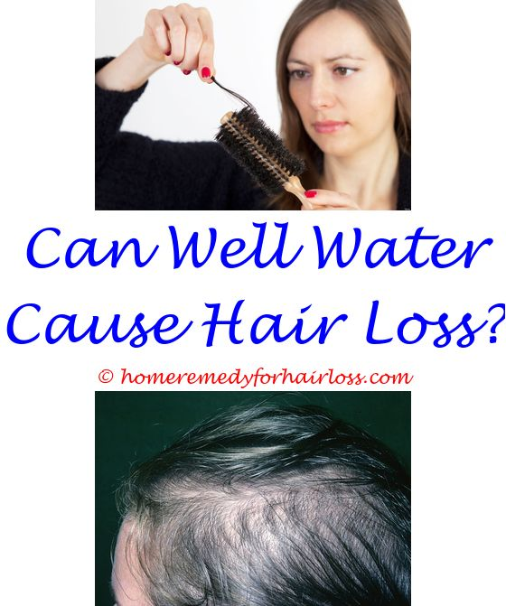 Hair Replacement For Women Natural Hair Growth Products Hair Loss