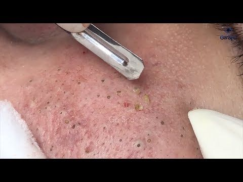 Pimple popping videos new ones 2019