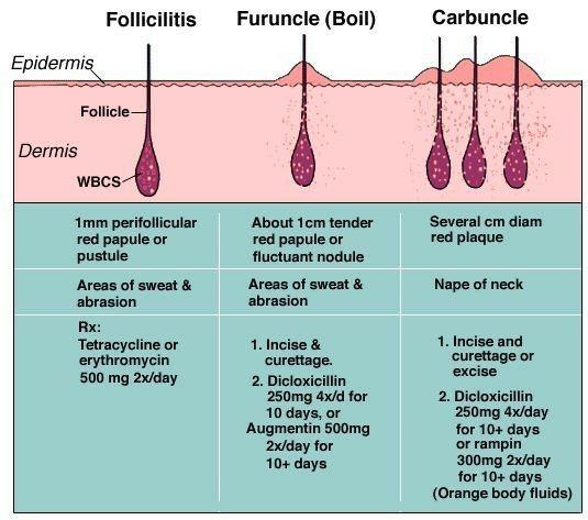 Fruncule / Boil vs Carbuncle     See tried | Screenshots