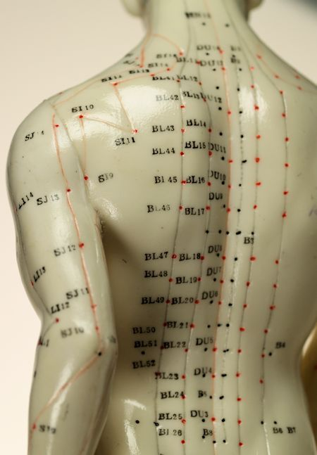 Anyone Can Become Knowledgeable About Acupuncture With ...