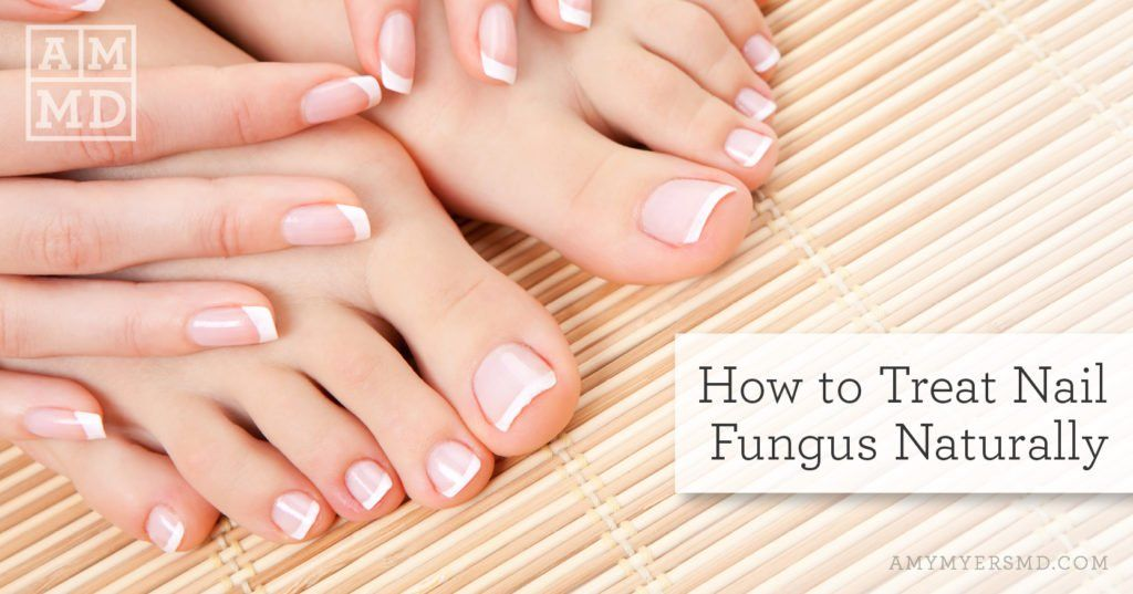 How To Treat Nail Fungus Naturally Amy Myers Md French Manicure Nails French Nails Nail Fungus