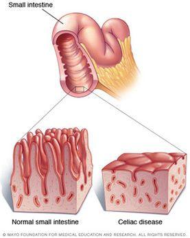 May is Celiac Disease Awareness Month   Celiac disease ...