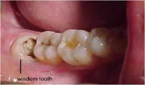 Dentaltown Where The Dental Community Lives Wisdom Teeth Wisdom Tooth Extraction Dental