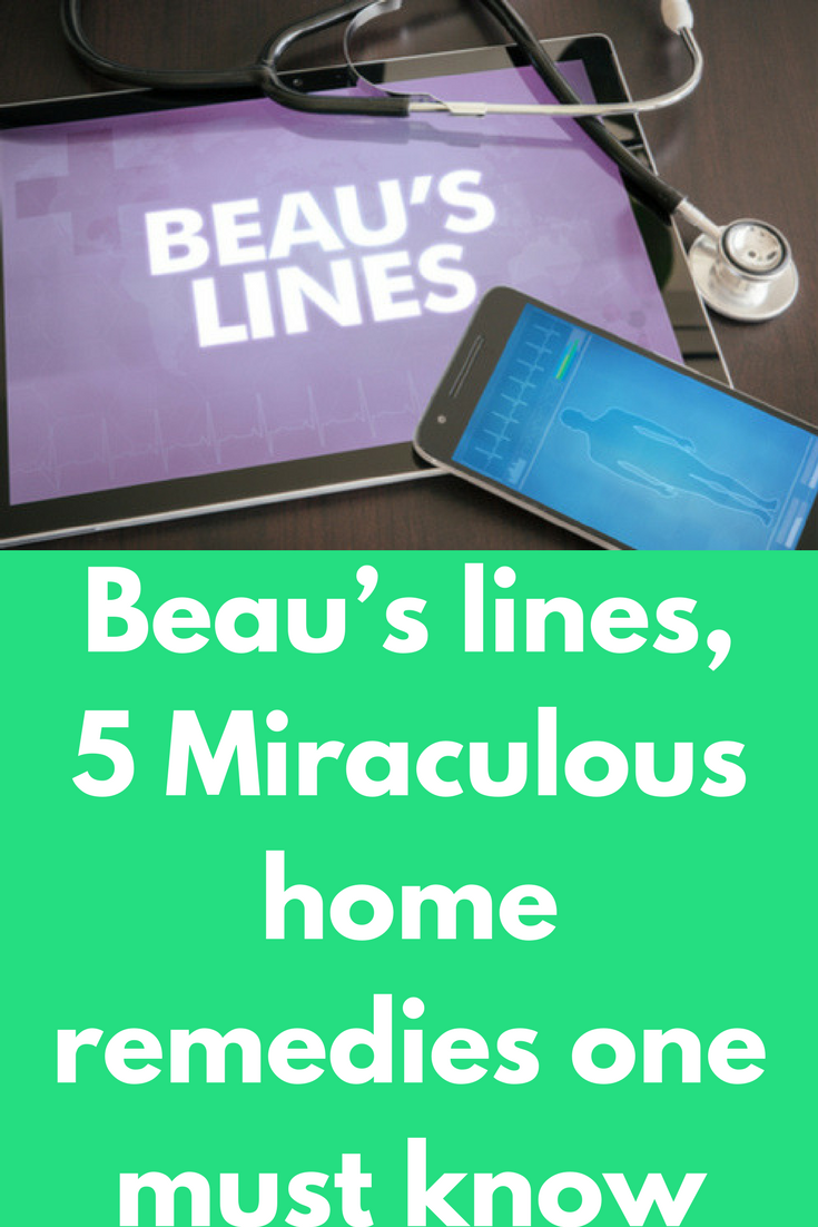 Beau\'s lines, 5 Miraculous home remedies one must know Named after ...