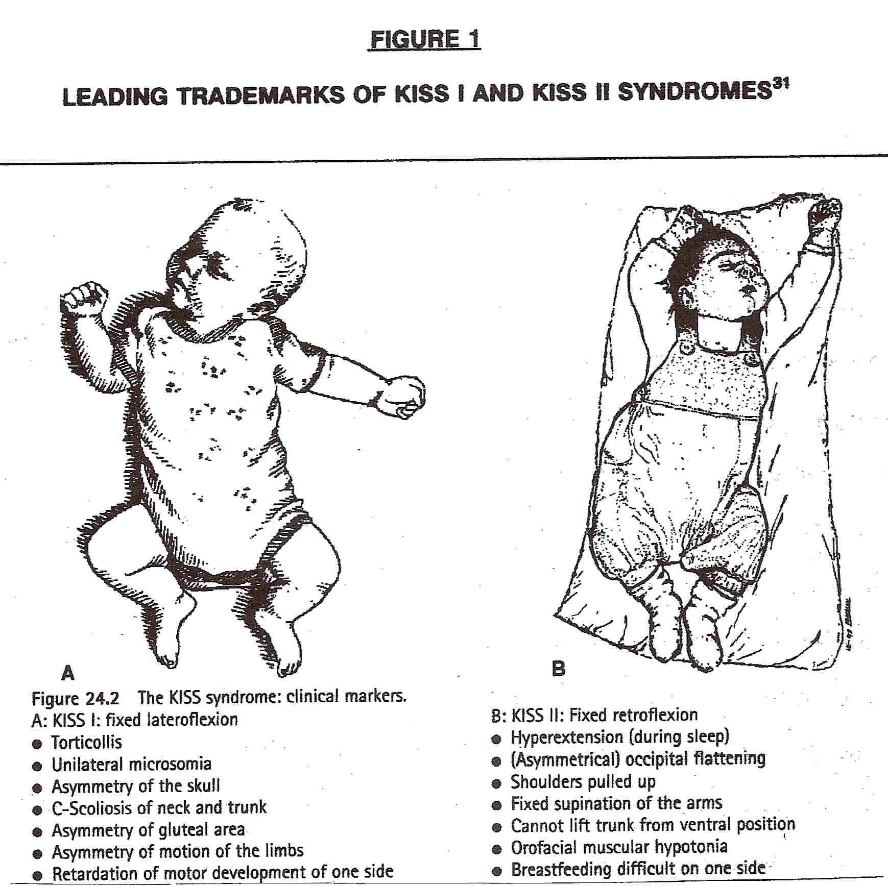 Kiss Syndrome Type I And Type Ii