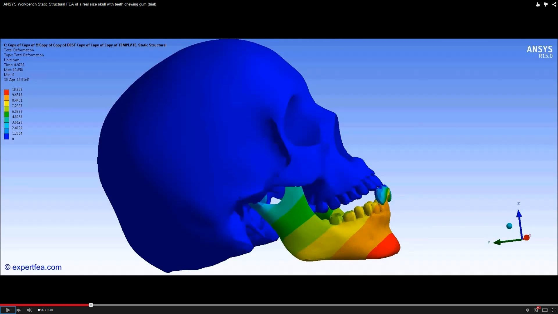 ANSYS Workbench Biomechanics FEA of a real size skull with