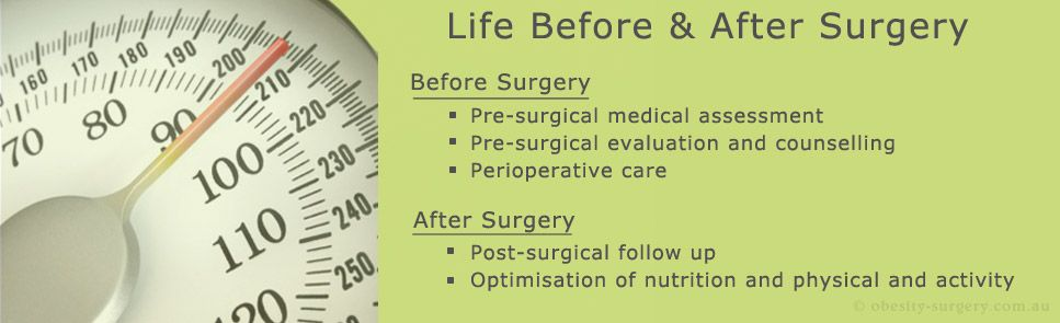 Learn about the presurgical medical assessment