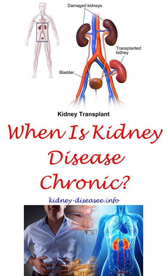 Kidney Stones Apple Cider Vinegar   Renal diet, Kidney stones and ...
