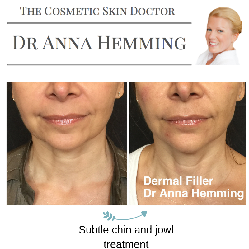 What A Difference Half And Hour Makes Did You Know That Your Face Symmetry Can Be Measured Using Equal Horizontal Obagi Skin Care Dermal Fillers Skin Health