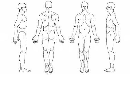 Intake Body Diagram