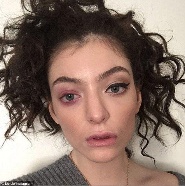 Lorde Wears Sunglasses Inside Lax To Hide Eye Infection Lorde Eye Black New York Fashion Week