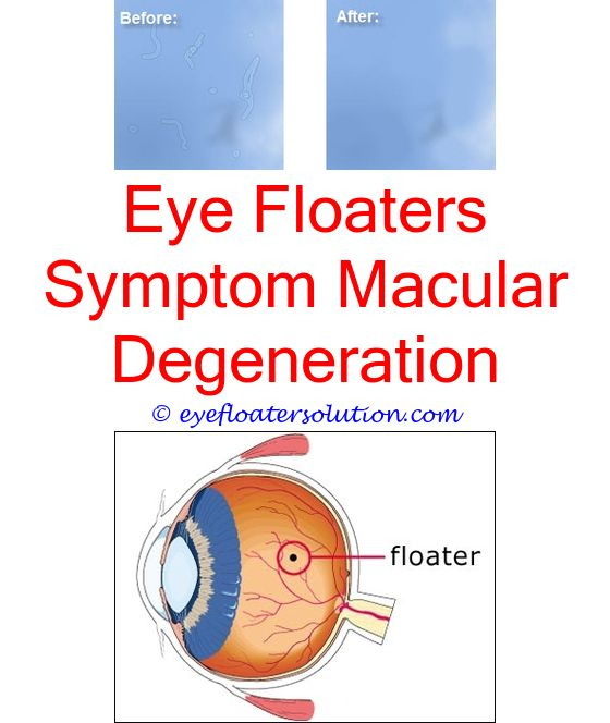 What Causes Dark Floaters In Your Eyes   Makeupgenk com
