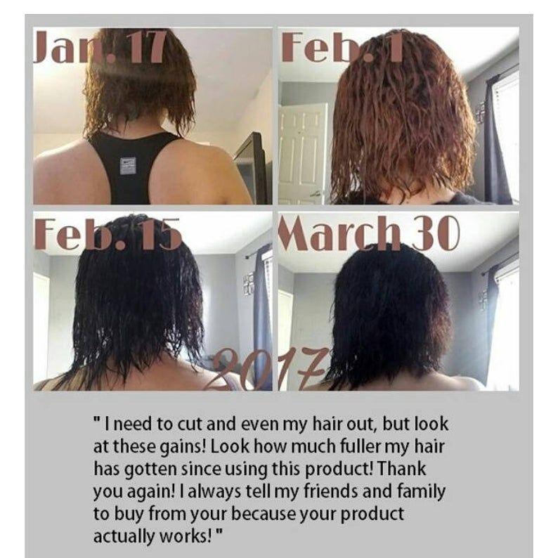 Formula D Hair ReGrowth Serum For CCCA- Baldspots-