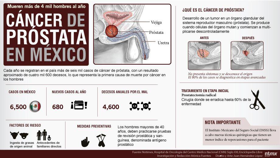 tratamientos para el cancer de prostata en mexico