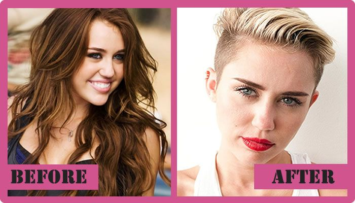 Miley Cyrus Plastic Surgery Before And After Miley Cyrus