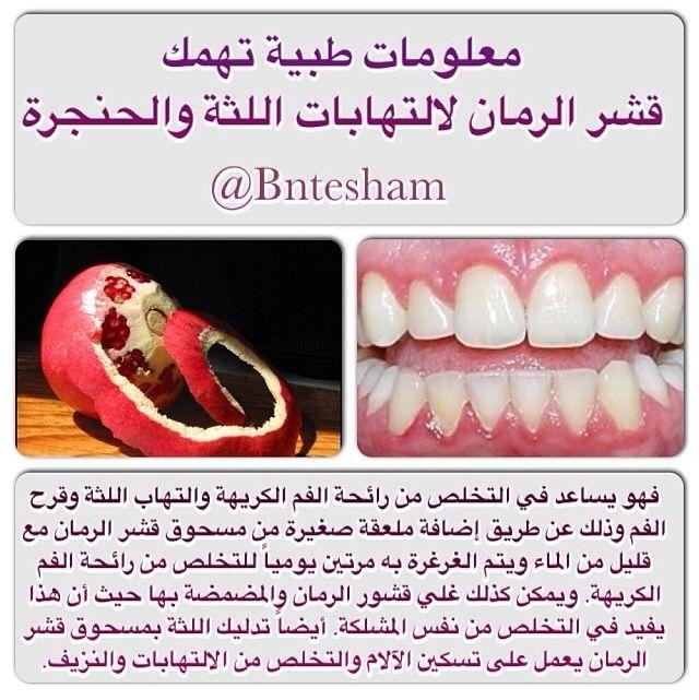 معلومات طبية معلومات عامة التهاب اللثة صحة الفم صحة الاسنان رائحة الفم Natural Medicine Health Healthy Health Food
