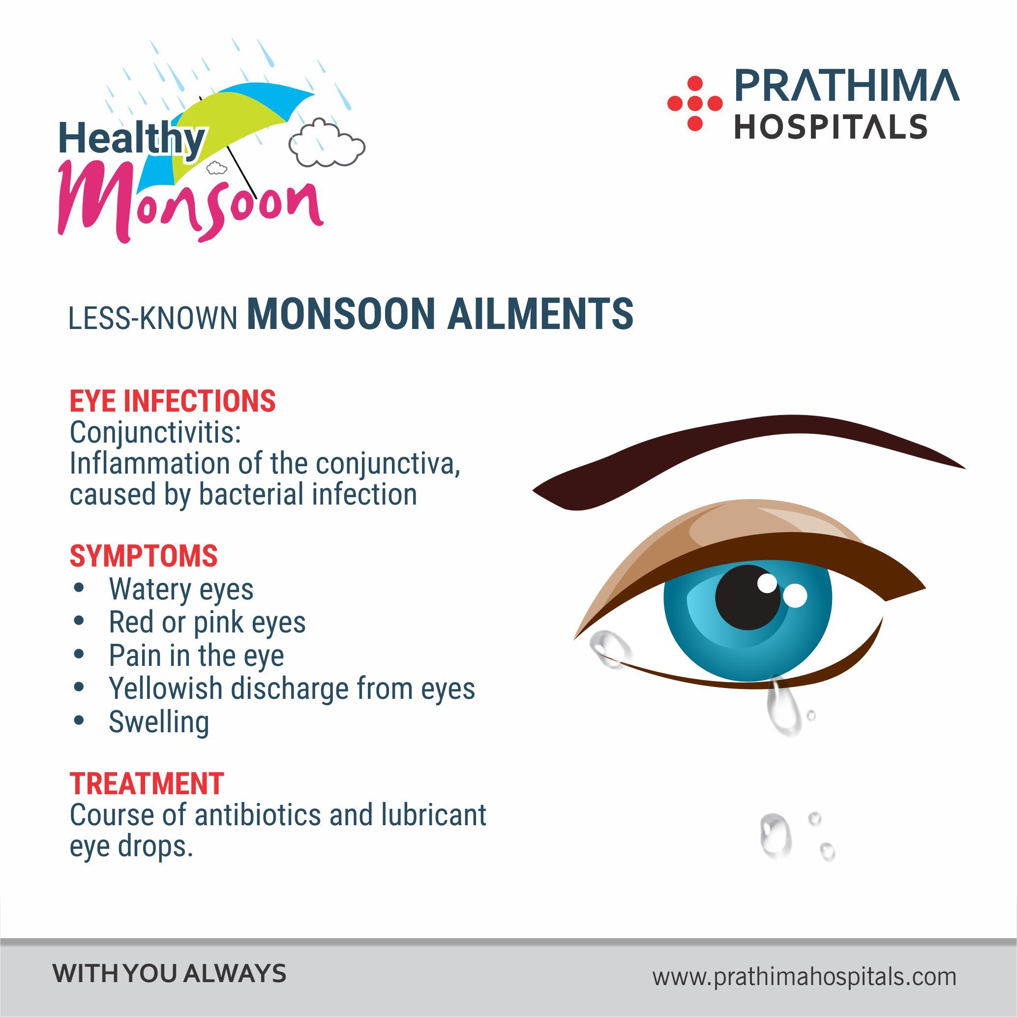 Allergic Conjunctivitis Vs Bacterial Pictures To Pin On: #prathimahospitals LESS-KNOWN MONSOON AILMENTS EYE