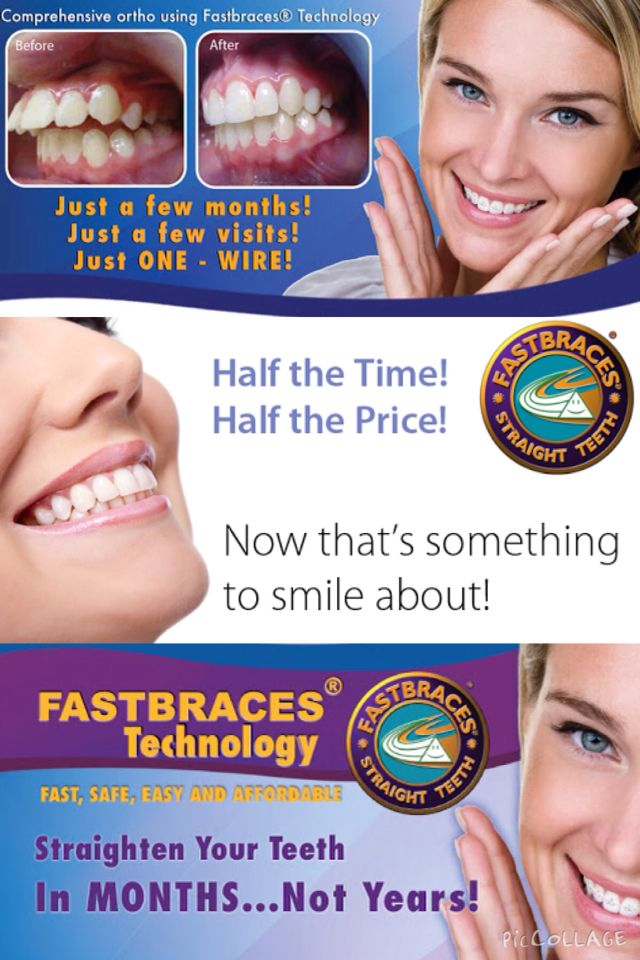 Want Straight Teeth We Are A Fastbraces Provider Contact Us Today