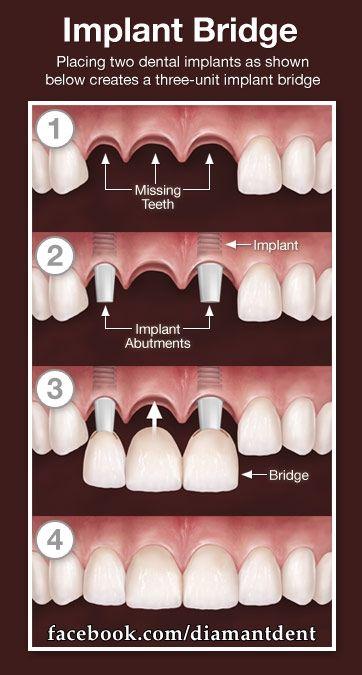 3 unit bridge with implants