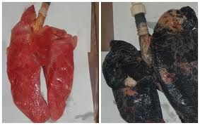 healthy lungs vs smoker