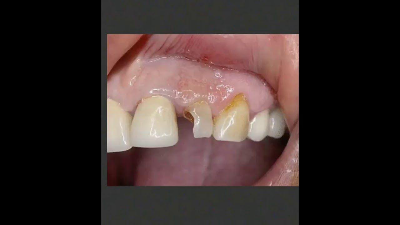 Harrison pointe dentistry crown dentistry broken tooth