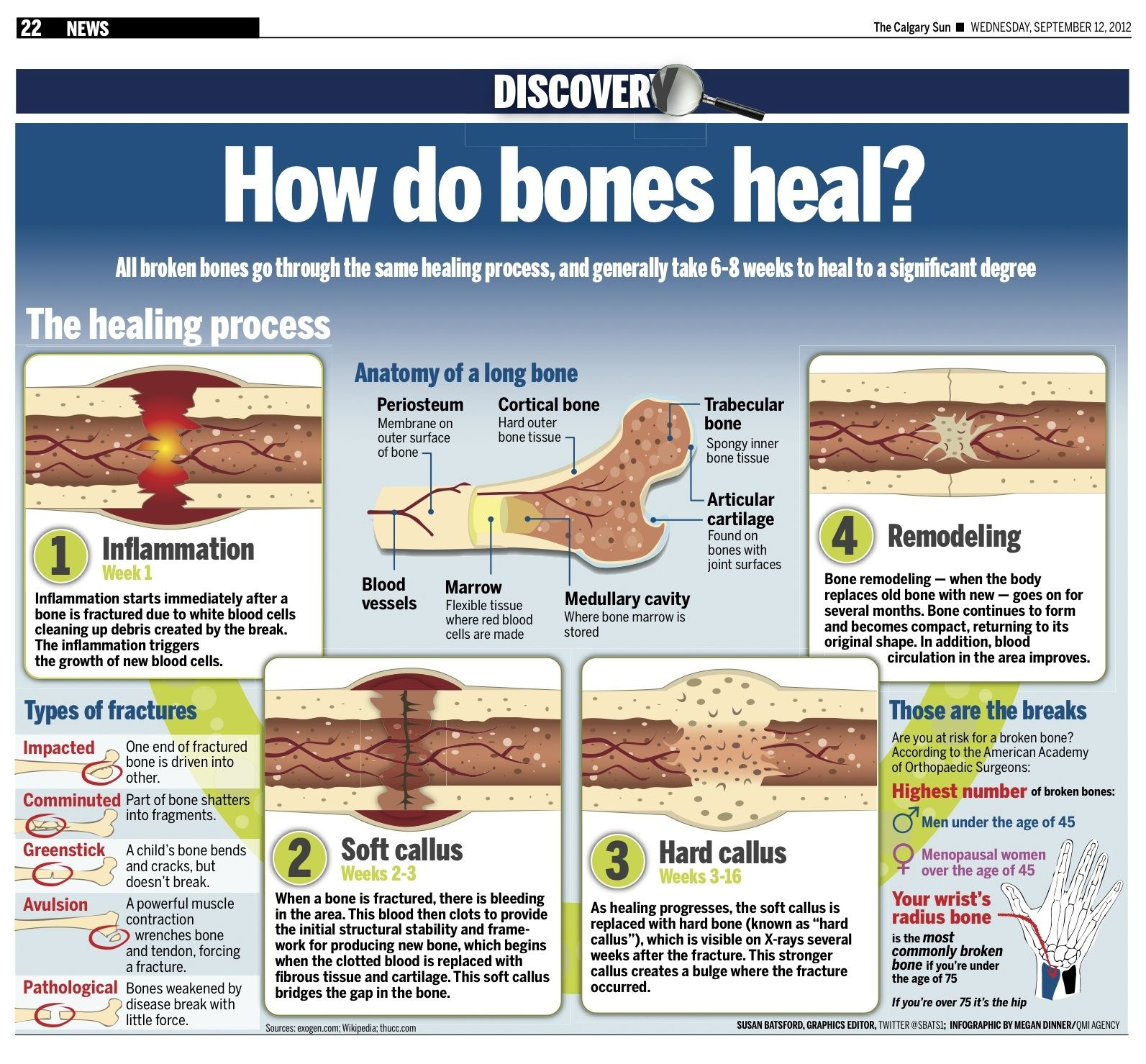 healing process of a bone fracture Getting the right vitamins is essential to the timely bone fracture healing process while protein and minerals are the building blocks for bone, vitamins are the catalysts for many of the millions of reactions involved in bone repair.