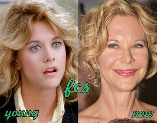 Meg Ryan Plastic Surgery Before And After Hollywood