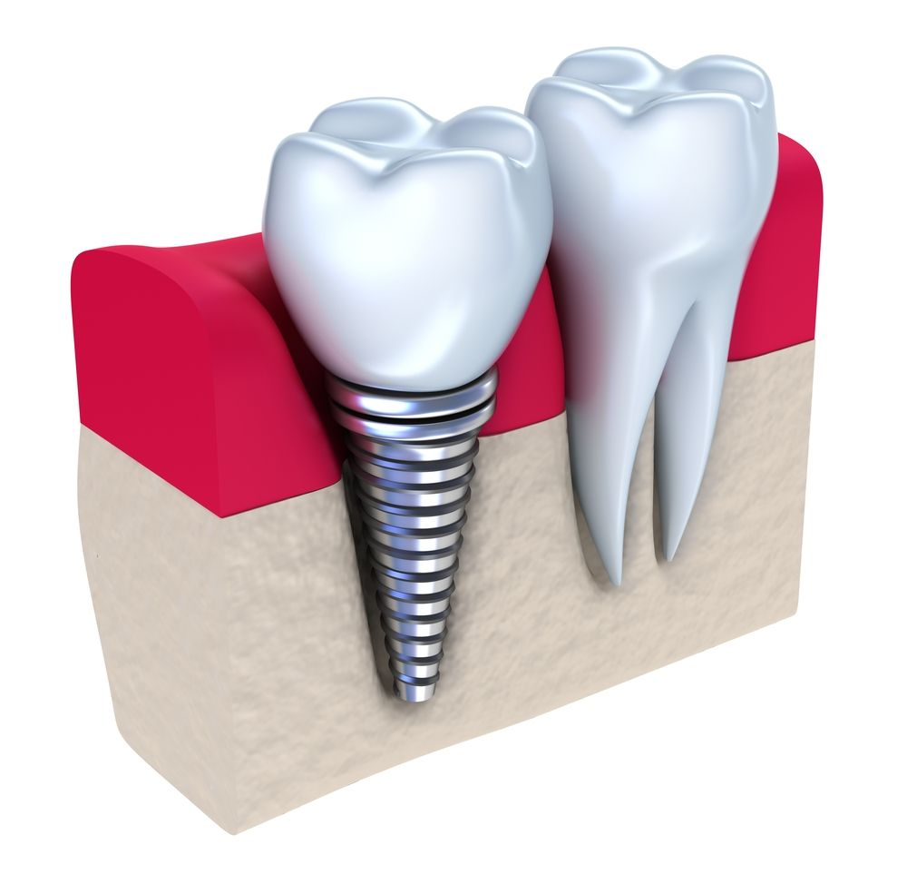 Troc Echange Materiel prothesiste dentaire sur France Troc com