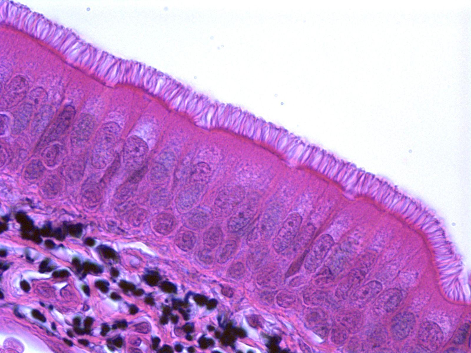 pseudostratified columnar epithelium - Google Search   Microscopia ...