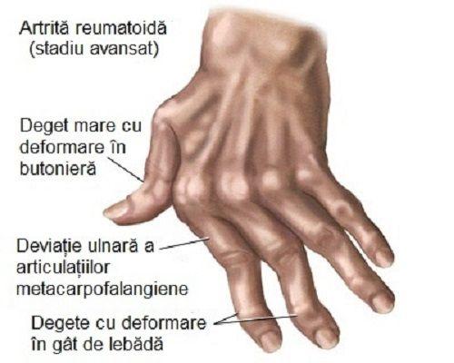 cu durere în articulațiile mâinilor