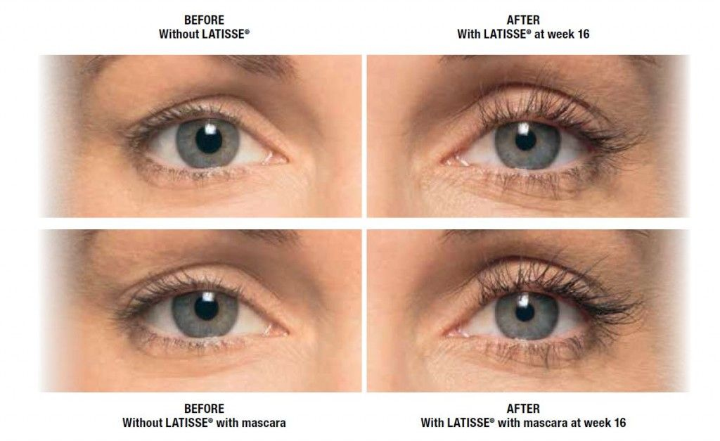 Before And After Of Latisse Latisse Eyelash Treatment Eyelashes