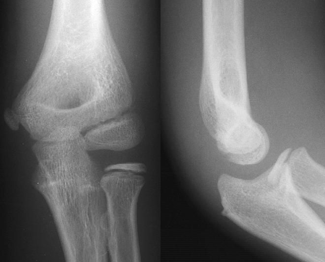What is medical X-ray photography
