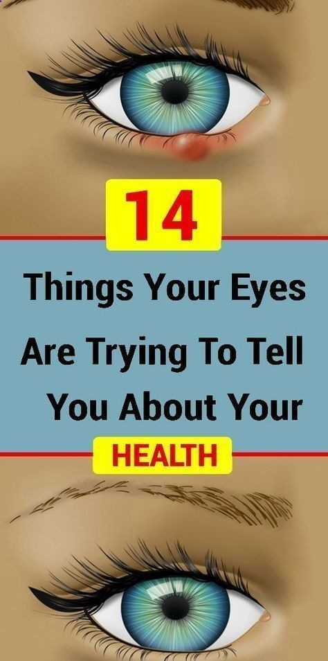 14 Things Your Eyes Are Trying To Tell You About Your Health – HEALTH AND BEAUTY - HealthyMilion #he...