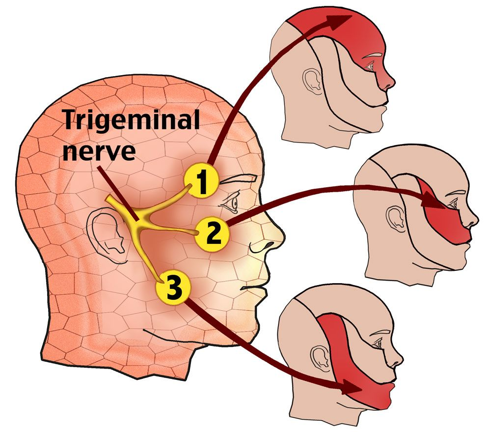 Neuralgia of the trigeminal nerve - treatment. Inflammation of the trigeminal nerve - symptoms 74