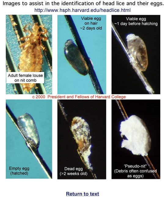 Stages Of Nits Of Head Lice.
