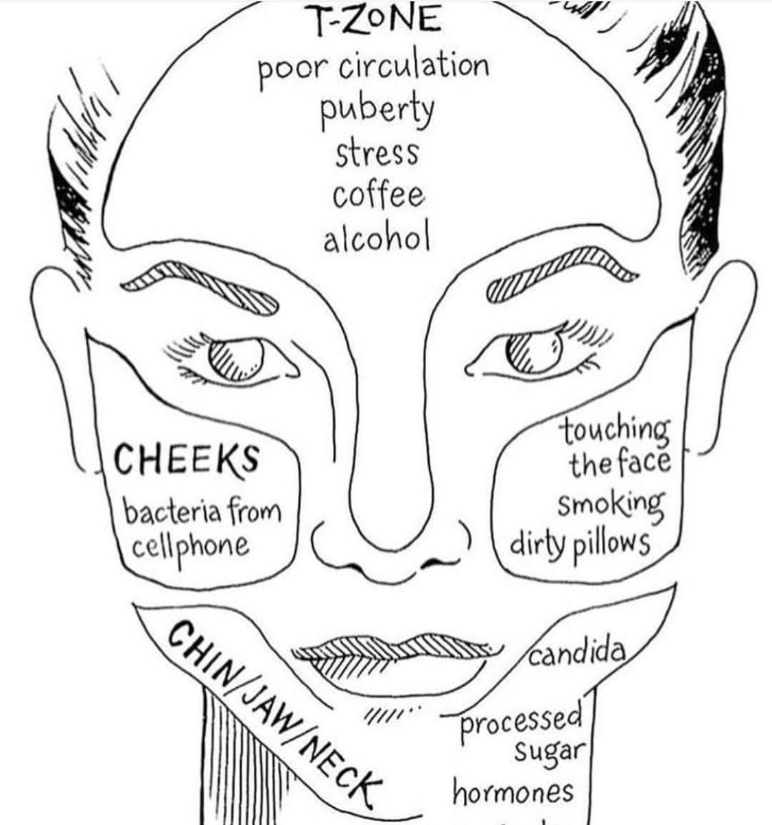Acne Guide