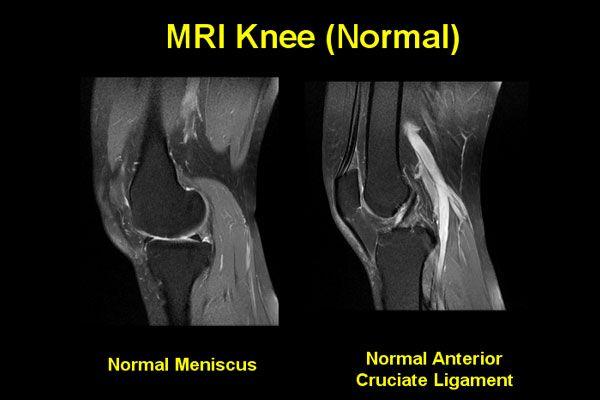 Mri knee google search anatomy imaging pinterest mri knee google search ccuart Images