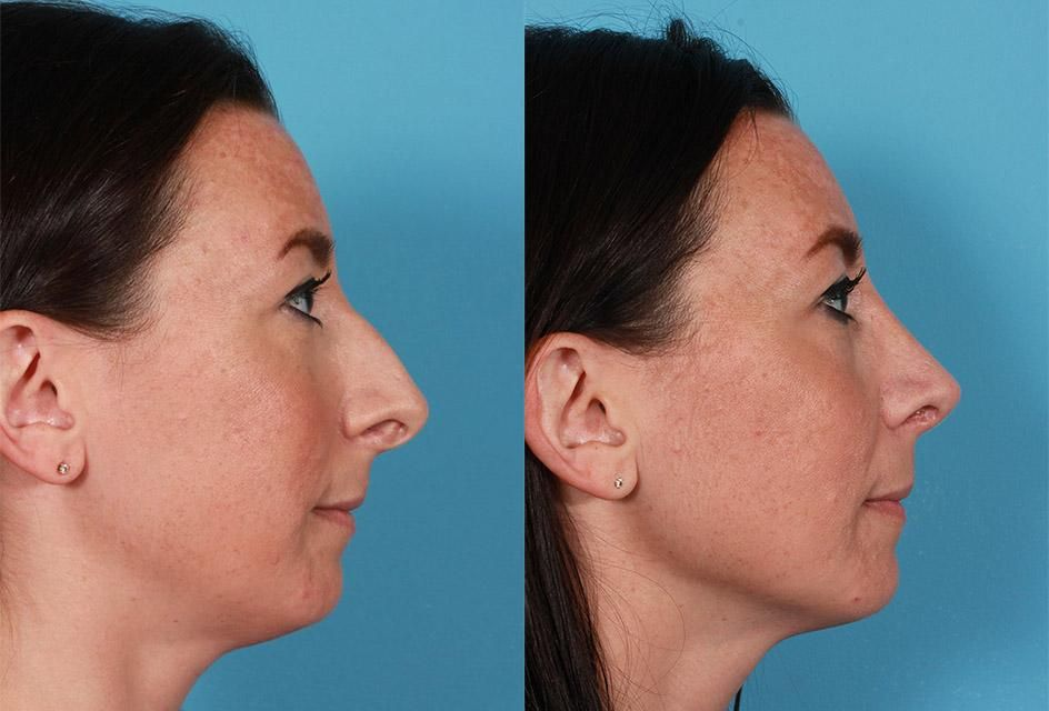 Patient 17260, Rhinoplasty Before and After Photos