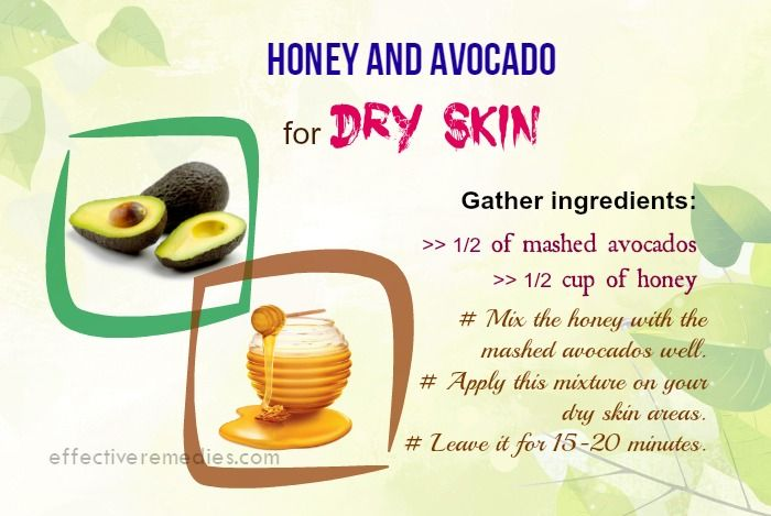 16 Natural Home Remedies For Dry Skin On Face Body In Winter Dry Skin Remedies Dry Skin On Face Dry Skin Diet