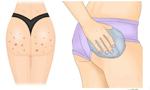 Best way to get rid of acne scars on buttocks