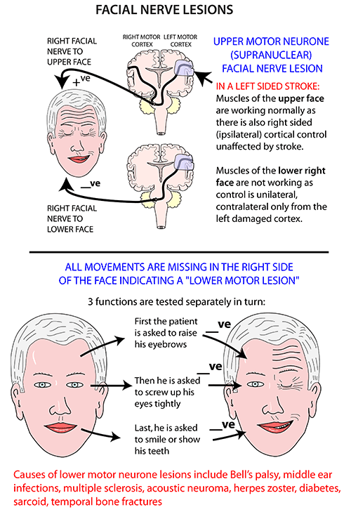 Facial weakness multiple sclerosis
