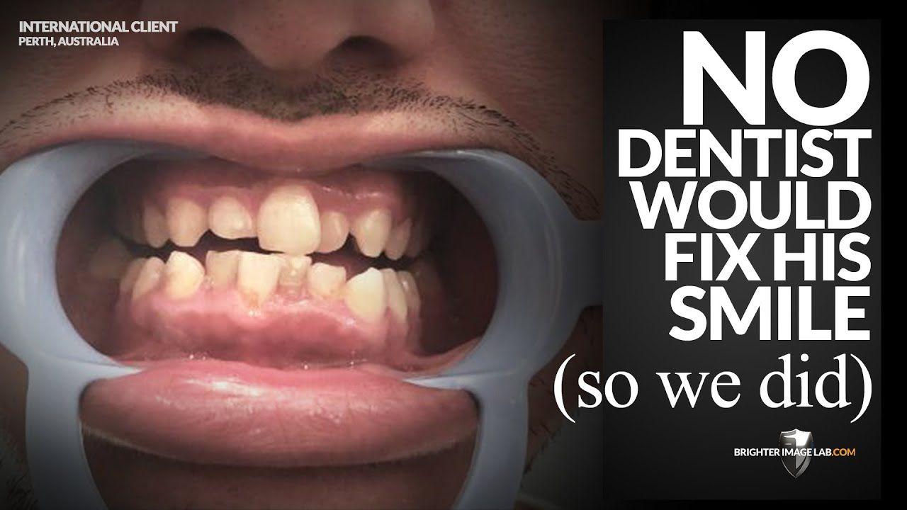 When We Say Brighter Image Lab Is Worldwide We Mean It Smile Makeover Stained Teeth Dental Veneers