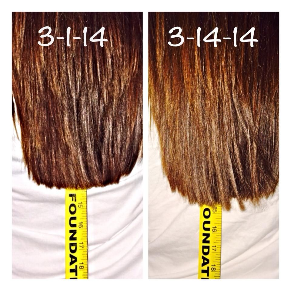 One Inch Hair Growth In Just 13 Days Using Our All New Hair Skin Nails Product 33 For A One Month Supply Longhair Hair Skin Nails Hair Beauty Hair Skin