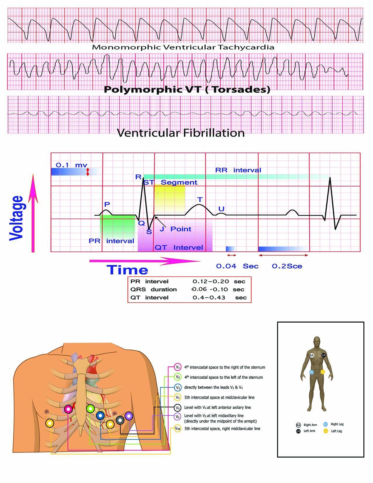 12 Lead Ekg Pocket Card Aprn World 9781941004067 Amazon Com Books Nursing School Notes Ekg Healthcare Infographics