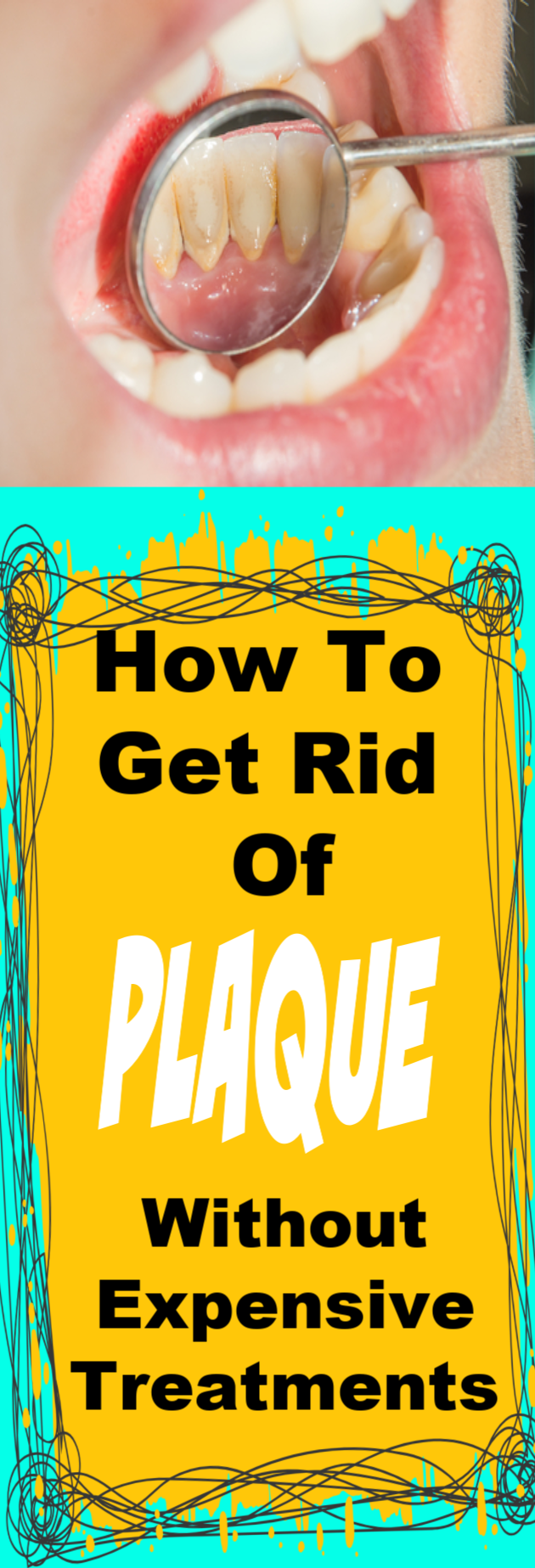How to Get Rid of Plaque and Whiten Your Teeth Without Expensive Treatments - Glowpink #howtowhitenyourteeth