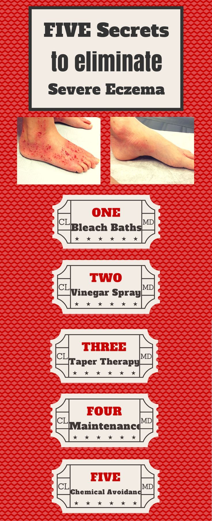 5 Secrets and techniques to remove extreme eczema! Mix issues like moist wraps, bleach tub....  Look into more by going to the image