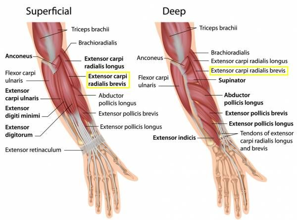 Tennis Elbow What Is It Do You Have It And How Do You