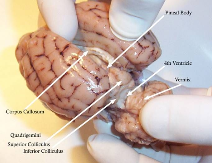 Sheep Brain Dissection: corpus callosum, pineal body, 4th ventricle ...