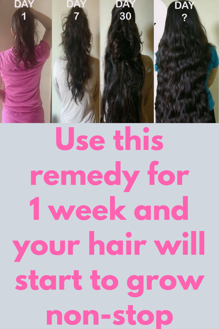 Use This Remedy For 1 Week And Your Hair Will Start To Grow Non Stop In This Post I Am Going To Hair Growing Tips Thick Hair Remedies Hair Remedies For Growth